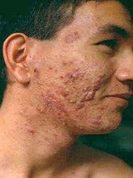 El acné el tratamiento cístico