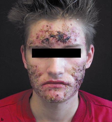 Cuando acaba el acné
