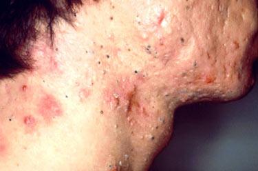 Las causas de las anguillas blancas sobre la persona