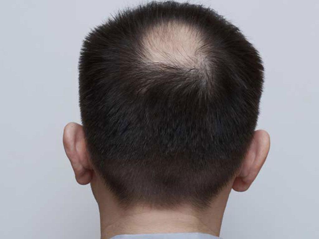 Las recetas de las máscaras para el crecimiento acelerado de los cabello