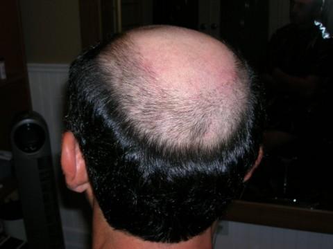 Cuando el efecto después de la caída de los cabello