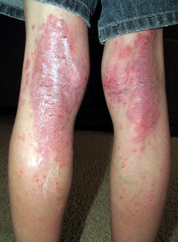 La soia si mescola a dermatite atopic