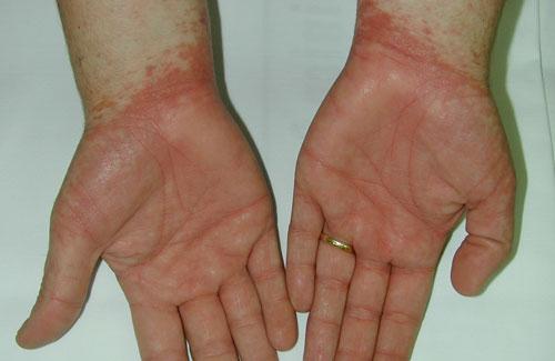 Como se llama el tratamiento de las uñas