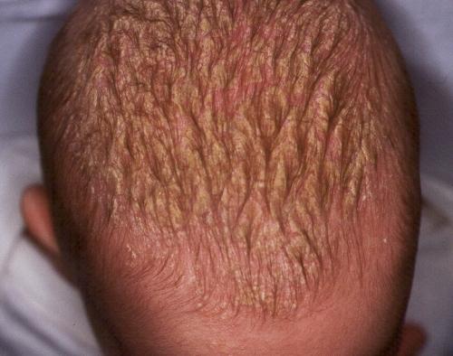 Antihistamínico atopichesky la dermatitis