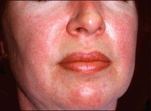 аллергия на коже красные пятна чешутся фото