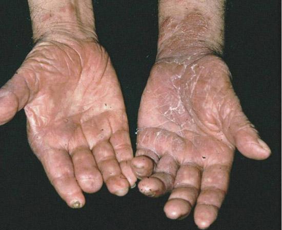 Palmoplantar keratoderma | DermNet New Zealand
