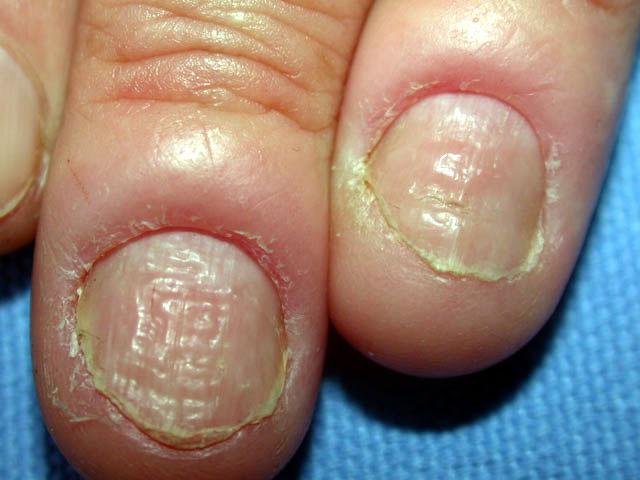 El spray para el tratamiento del hongo de las uñas en los pies