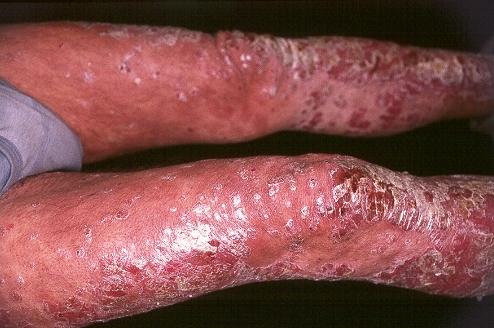 La manifestación de la psoriasis en las manos