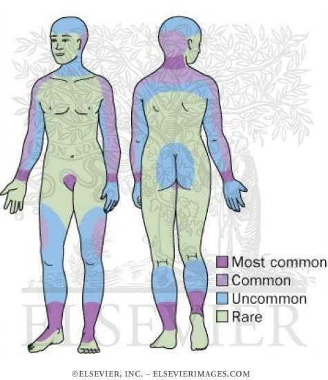 Los puntos blancos sobre la persona son parecidos a los granos